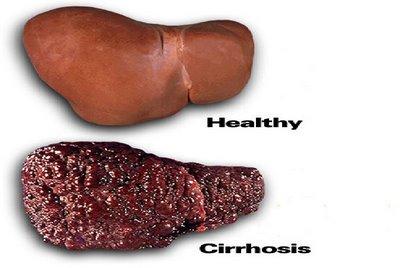Ciroza jetre simptomi i lečenje