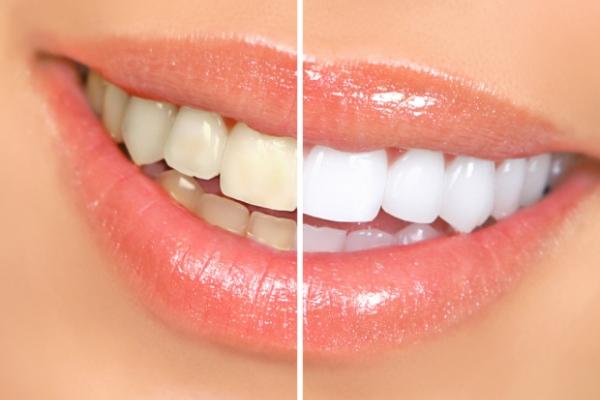 Izbjeljivanje zuba u kućnim uslovima