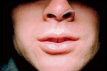 Suva usta simptomi i lečenje