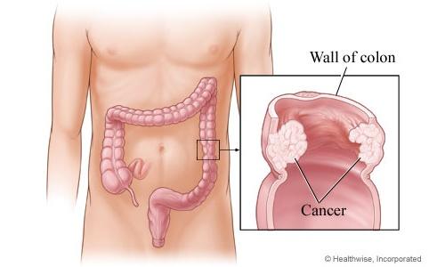 Sindrom propustljivog creva