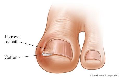 Urasli nokti – Kako sprečiti i lečiti ovu pojavu