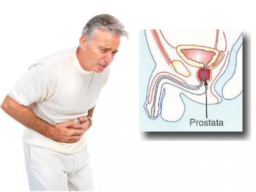 Šta je prostata i koje su simptomi upale prostate