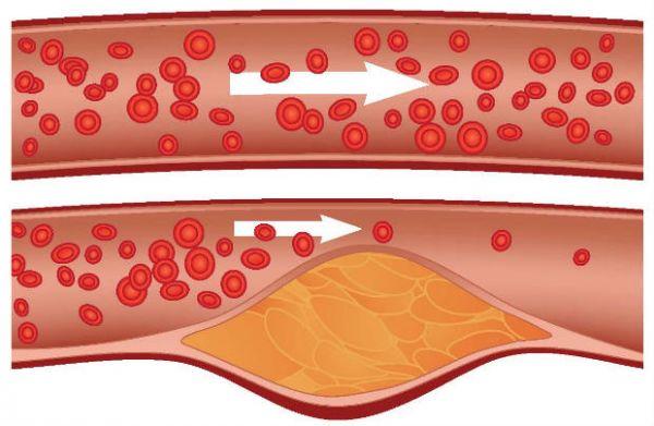Ateroskleroza koronarnih arterija