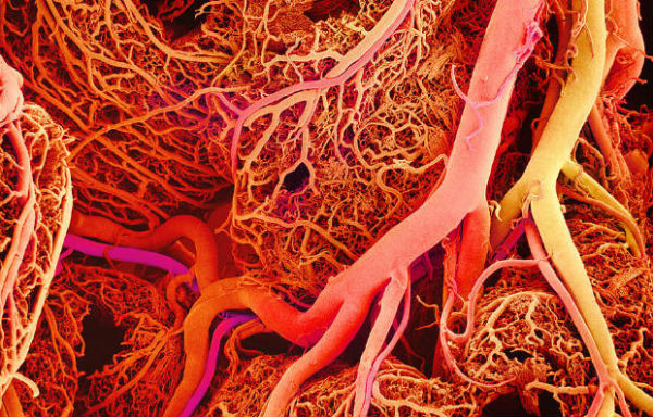 Hiperlipoproteinemija tip 3