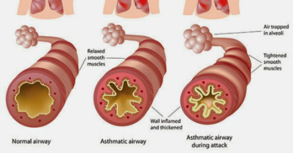 Hiperlipoproteinemija tipa I, ili hiperhilomikronemija