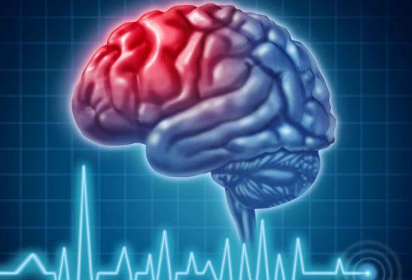 Ishemični moždani udar