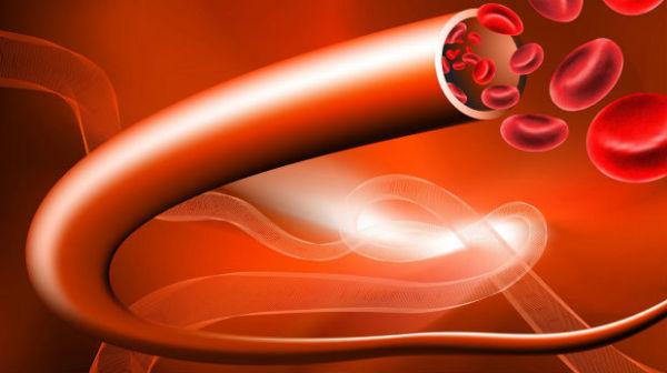 Porodična hipertrigliceridemija, tip 4 hiperlipoproteinemija