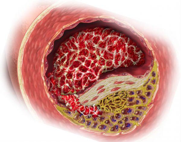 Program za povlačenje ateroskleroze