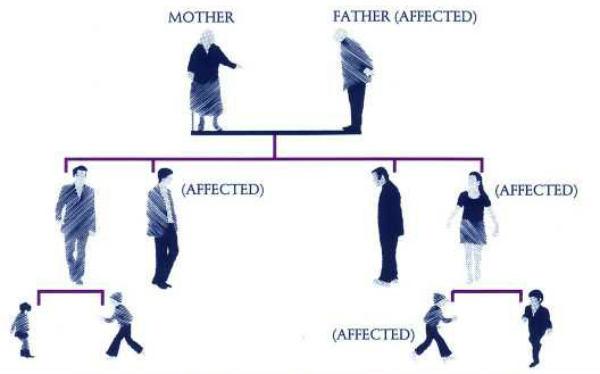 Nasledne bolesti i genetika kod ljudi