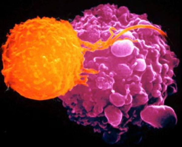 Uloga imuniteta u odbrani od tumora
