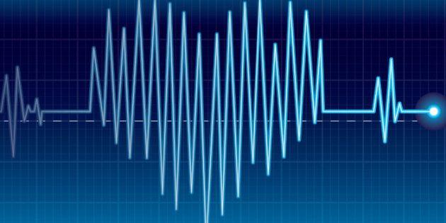 Aritmija (preskakanje srca) – nepravilni srčani ritam