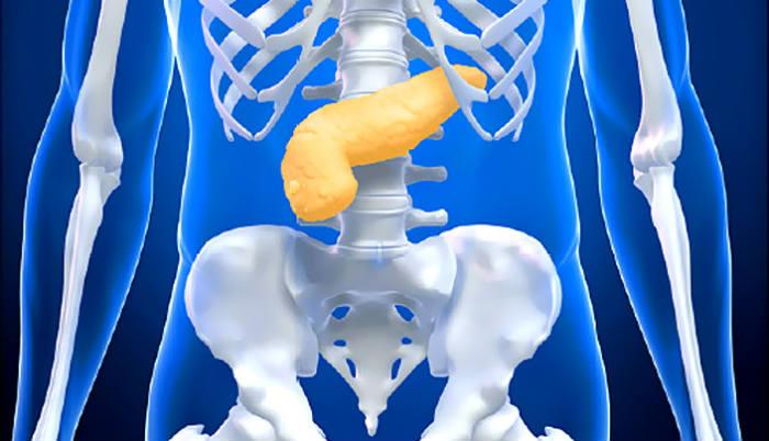 Rak pankreasa